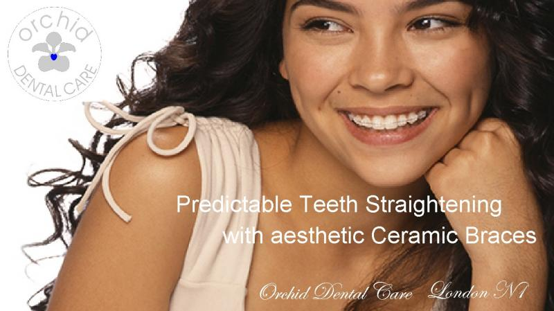 Predictable Teeth Straightening with aesthetic Ceramic Braces